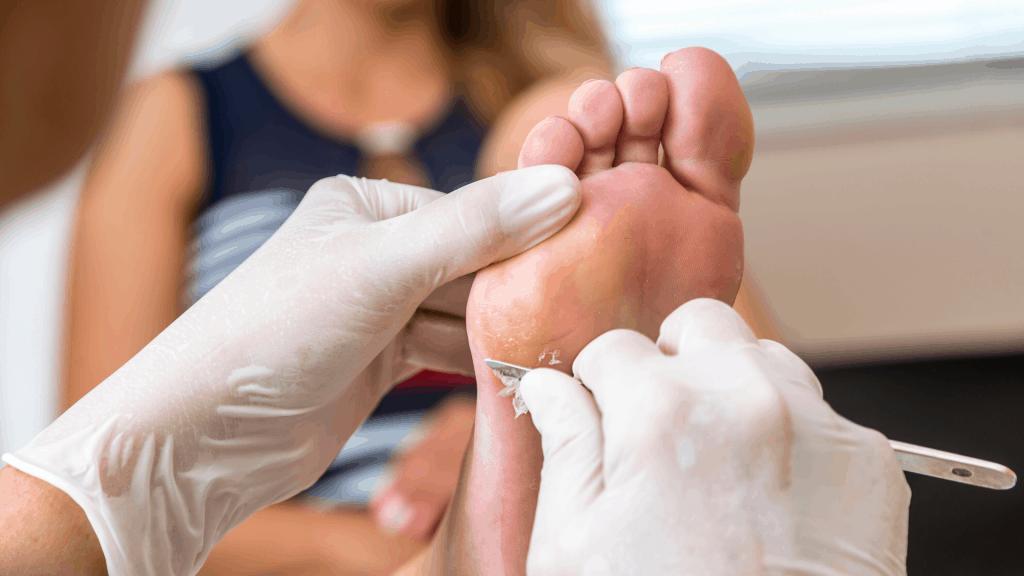 Pflege von eingewachsene Nägeln